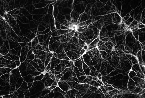 Rede Neuronal